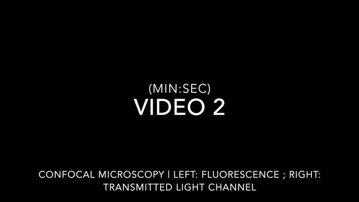 Thumbnail image of Video2_microscopy.mp4